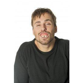 Gebit rotte tanden